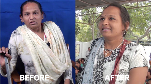 Geeta Rana, livelihood training beneficiary, before and after